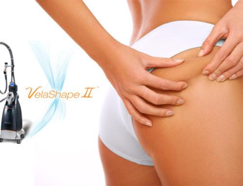 Антицелулитни и стягащи кожата процедури с VelaShape